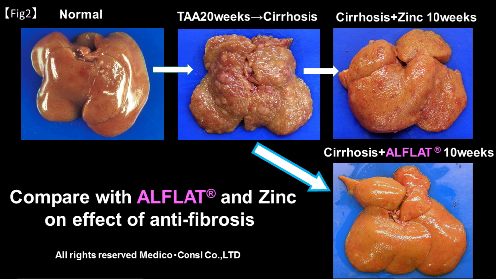 alflat suppresses fibrosis in liver cirrhosis medico consl co
