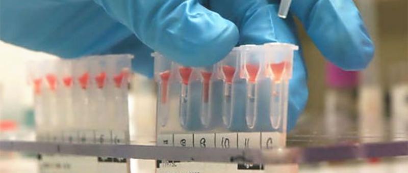 B型肝炎におけるGOT,GPT上昇と亜鉛、セレンとの関連