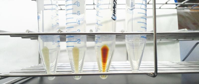 がんの働きを抑える遺伝子(がん抑制遺伝子)P53と亜鉛・セレン